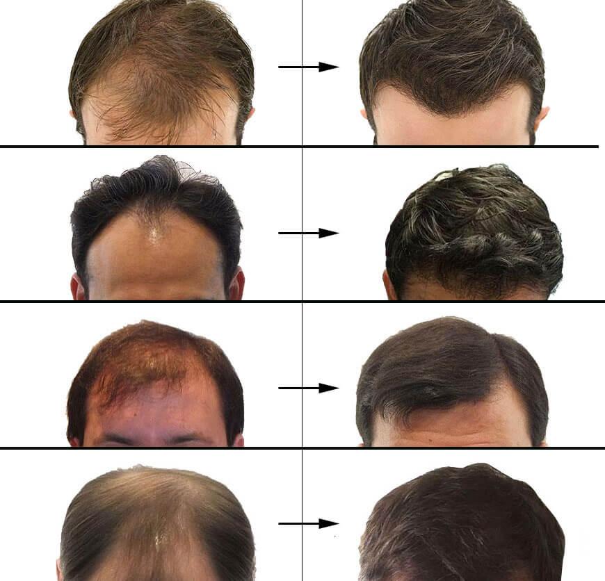 Fue tehnika presadjivanja kose